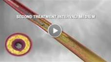 SOLIDWORKS Video Case Study - Cardiovasular Systems Incorporated - Medical